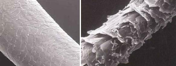 Electron microscope scans of human hair