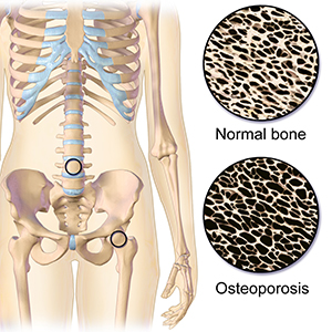 Osteoporosis_Locations
