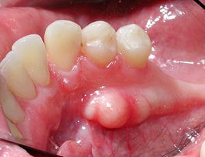 bony growth on the lower jawbone